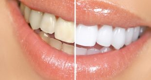 مالا تعلمه عن تبييض الأسنان